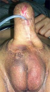 Kim FtM Penis with Penile Prothesis for FtM Sex