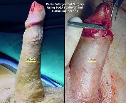 Make dick longer without surgery