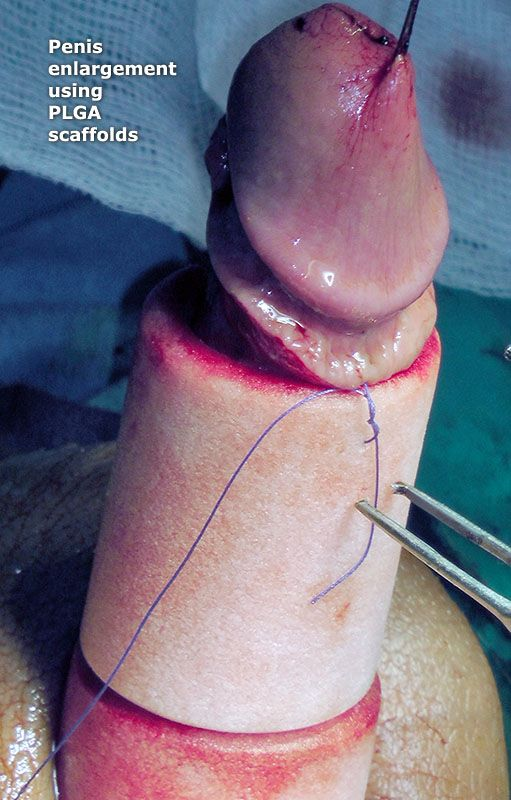 Penis enlargement using injections