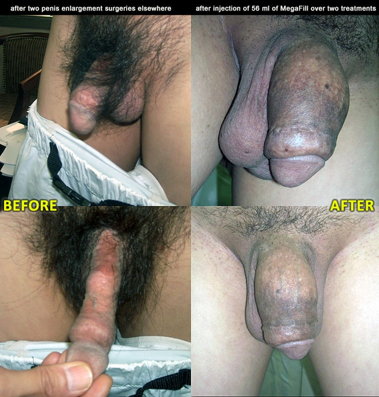 Penis Enlargement Peins Enlargement Surgery Before And After