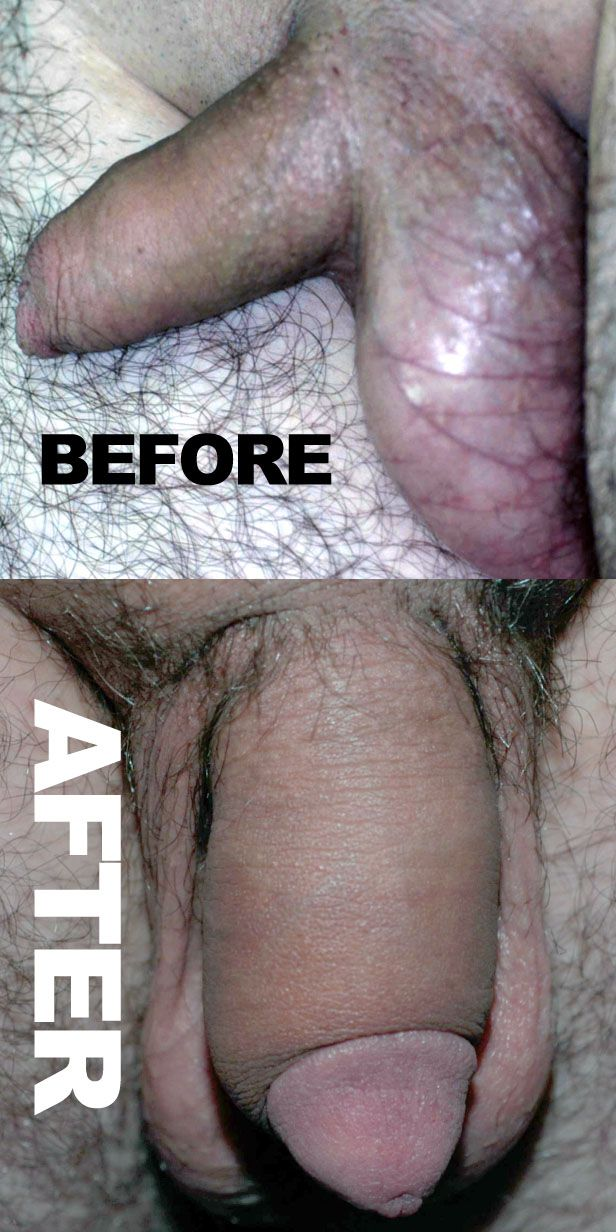 Penis Surgery Enlargement