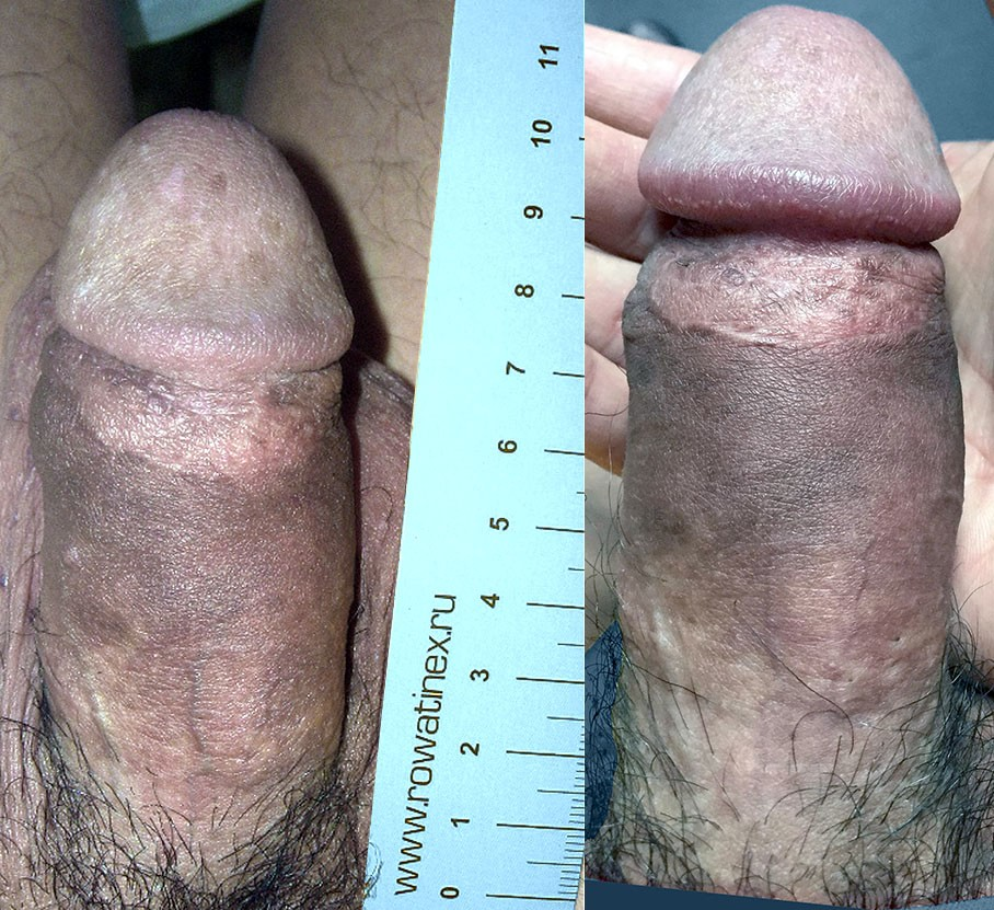 Myths about penis size